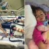Toddler's Brain Damage Reversed In World's First 'Miracle' Case