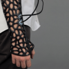 The 3D Printed Cast That Heals Bones 40-80% Faster