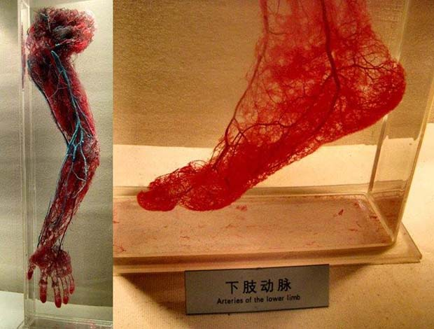13 - Human Blood Vessels