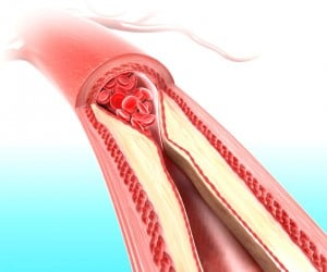 Clean Your Arteries