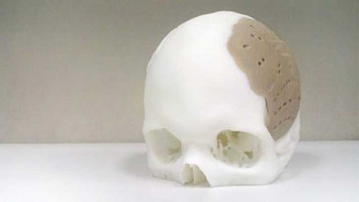 Skull replaced with a 3D-printed plastic prosthetic