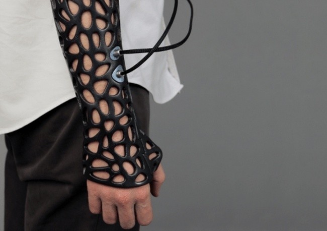 The 3D Printed Cast That Heals Bones 40-80% Faster