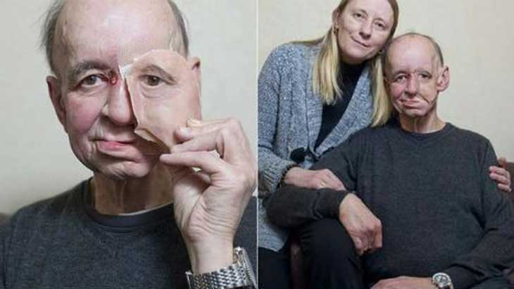 face-prostetic