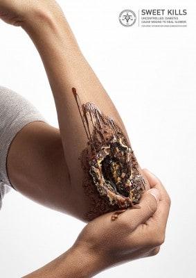 Disturbing Ad Campaign Shows The Dark Side Of Sugar [Photos]