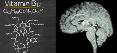 Schizophrenia And Autism Linked To Low Levels Of Vitamin B12 In Brain