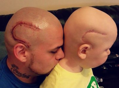 Dad Supports Son By Tattooing Cancer Scar On His Head
