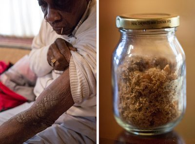 Rollins Edwards, who lives in Summerville, S.C., shows one of his many scars from exposure to mustard gas in World War II military experiments. More than 70 years after the exposure, his skin still falls off in flakes. For years, he carried around a jar full of the flakes to try to convince people of what happened to him.