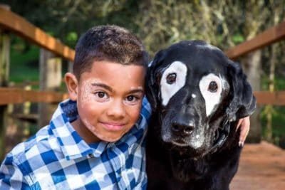 Boy With Rare Skin Disorder Was Ashamed Of His Look… Until He Met This Dog!