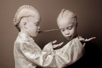 These Albino Twins Have Captivated The World With Their Unconventional Beauty