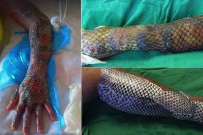 "Burn Patients Are Healing Faster With Less Pain Thanks To Fish ""Gauze"""