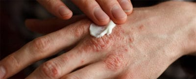 Scientists Have Discovered What Really Happens In The Skin When You Have Eczema