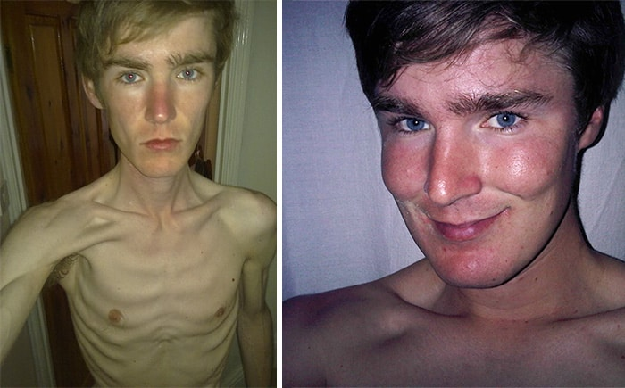 anorexic man face - photo #16