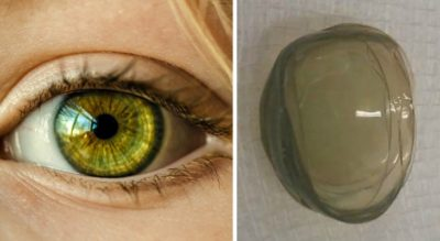 67-Year-Old Woman Had 27 Contact Lenses On Her Eye And Just Found Out