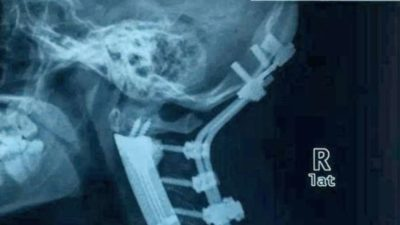 Amazing! Surgeons Replace Six Neck Bones With 3D-Printed Spine