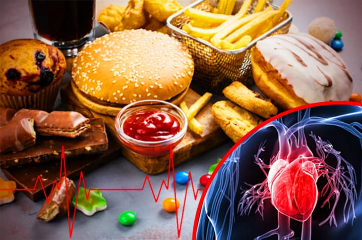 Different Foods That Put Your Heart At Risk And Make Your Blood Pressure Sky-Rocket